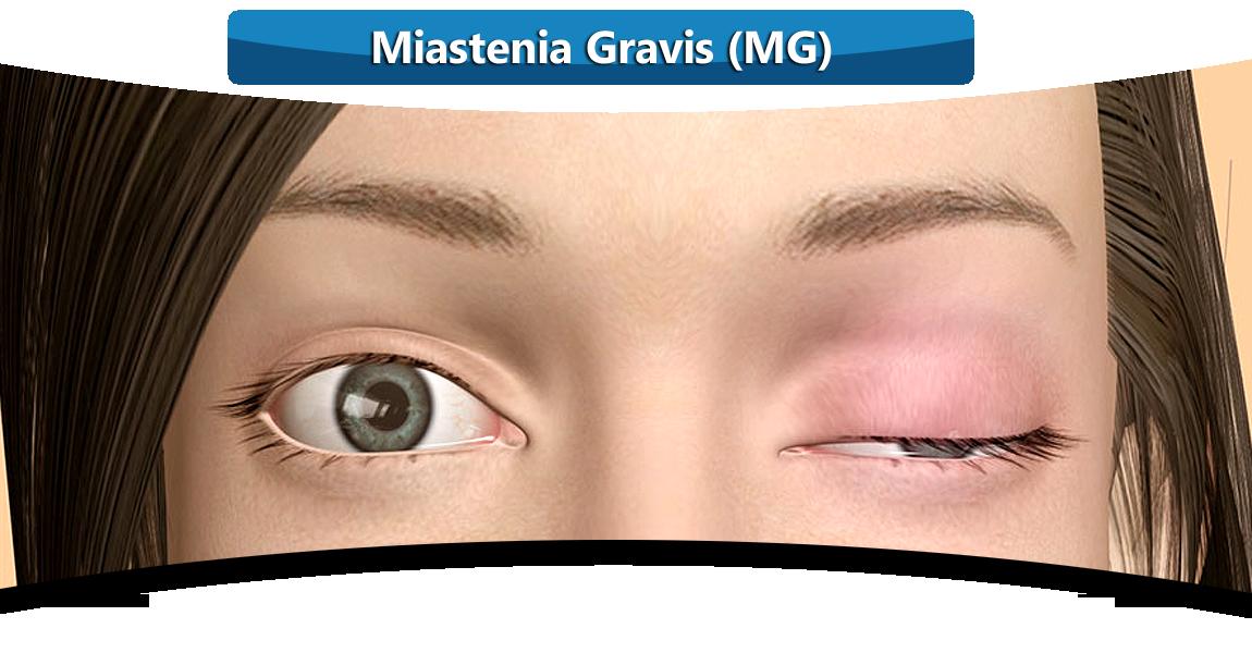 MIASTENIA-GRAVIS-DOCTOR-MANUEL-PORRAS-BETANCOURT