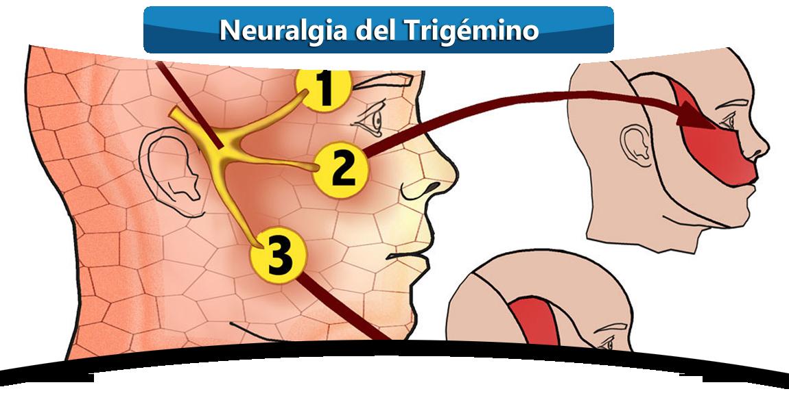 NEURALGIA-DEL-TRIGEMINO-DOCTOR-MANUEL-PORRAS