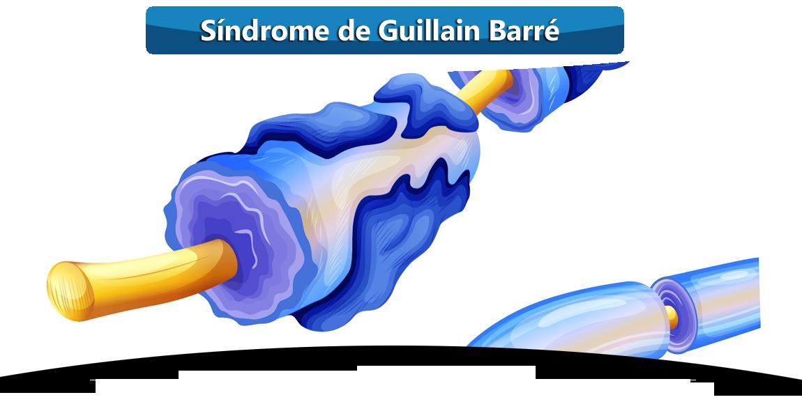 SINDROME-DE-GUILLAIN-BARRE-MANUEL-PORRAS